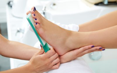 Hygiene 101: How To Remove Calluses From Feet